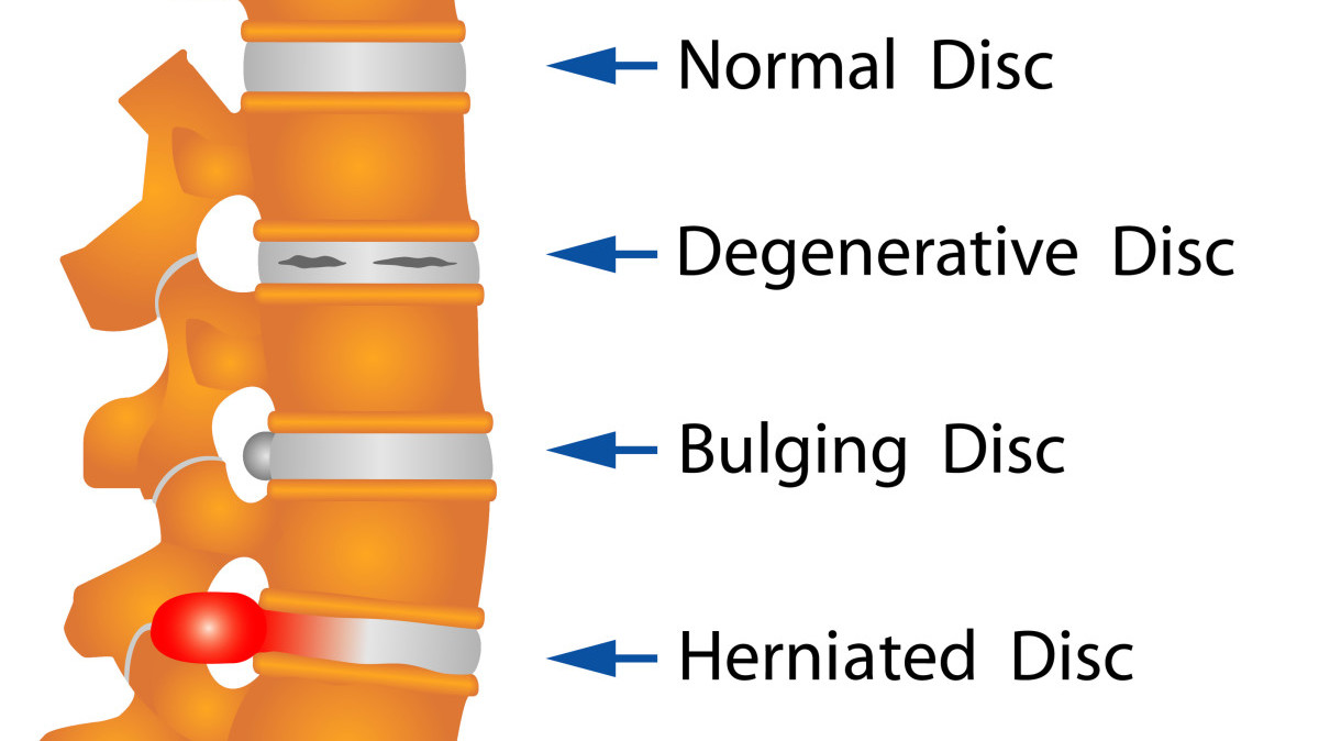 Image depicting different spinal conditions at different locations of the spine