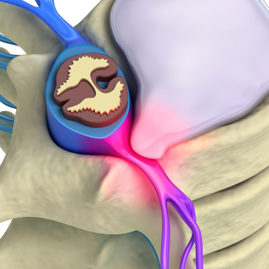 Animation of internal structure of spine, specifically skeletal and nervous demonstrating a prolapsed disk in a glowing pink colour