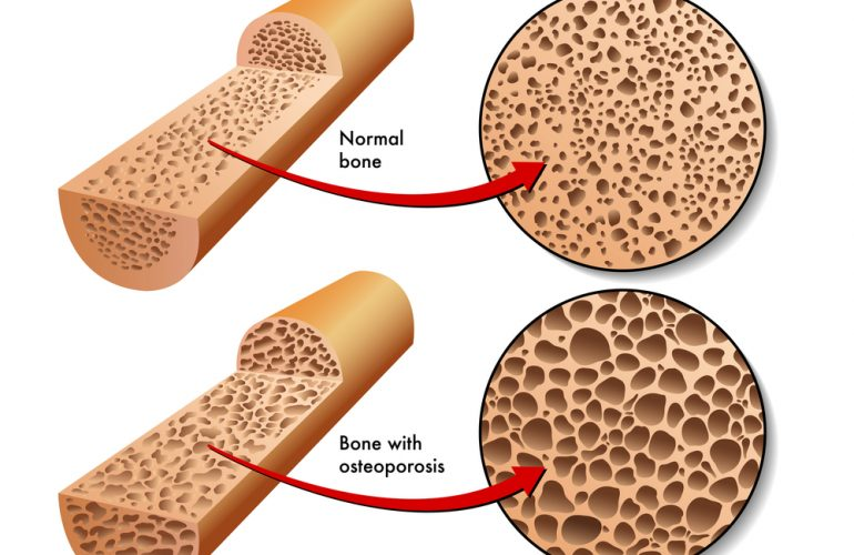 Osteoporosis comparing bones in animated image